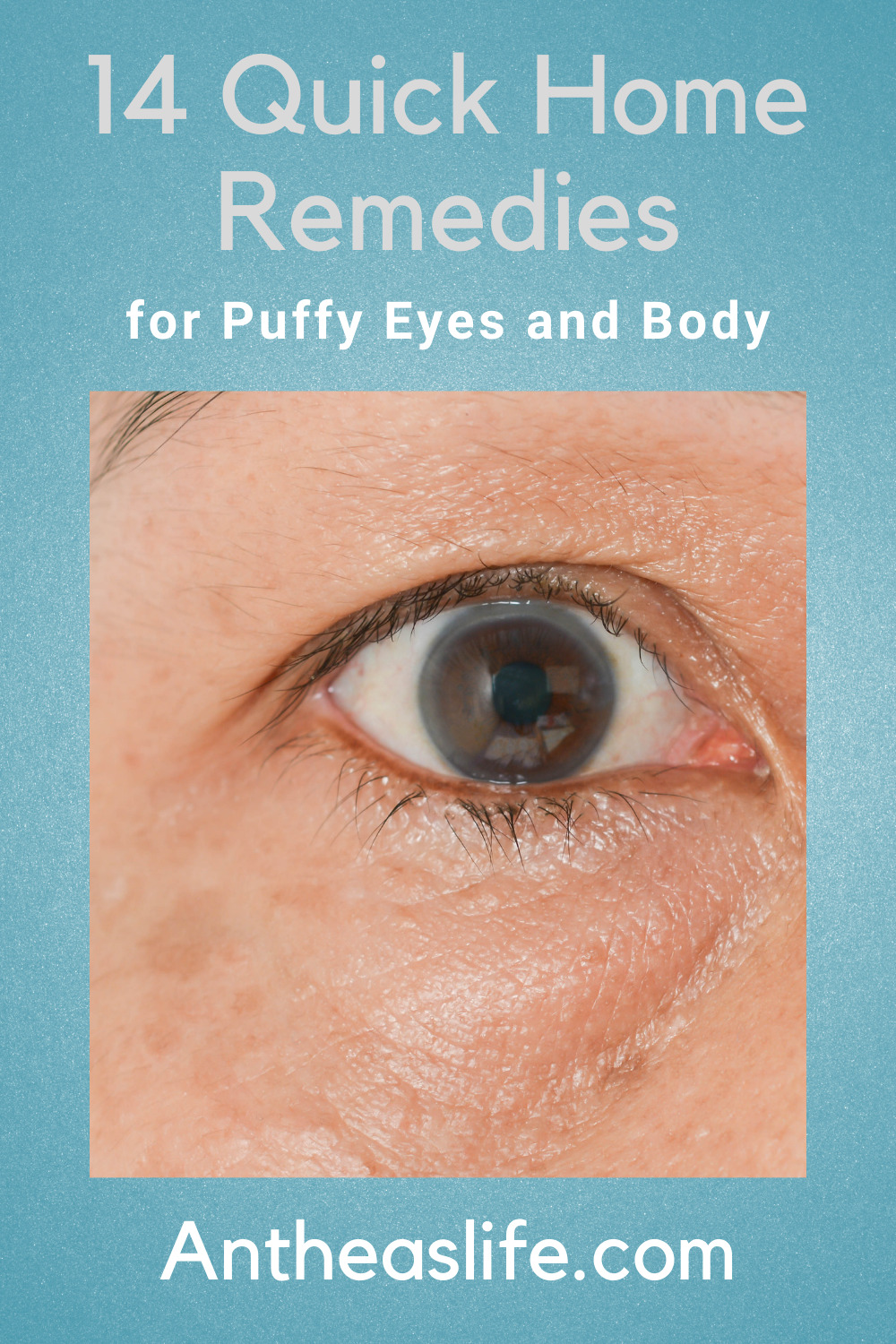 home-remedies-for-puffy-eyes-and-body
